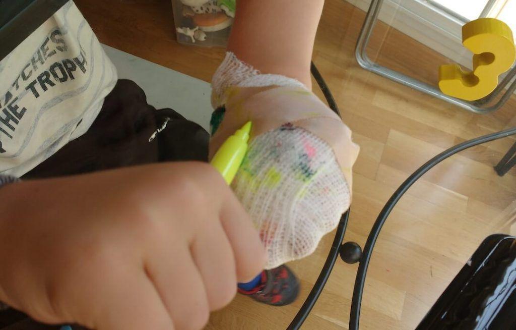Mi hijo pintando con un rotulador amarillo la venda que lleva en la mano izquierda